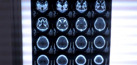 Brain-CT-scan-by-Akira-Ohgaki-702x336